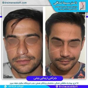 جراحی-بینی-کرج-1