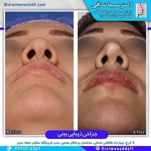 جراحی-بینی-کرج-3