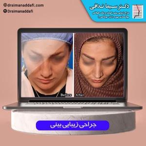 جراحی-بینی-کرج-4
