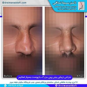 جراحی-بینی-کرج-5