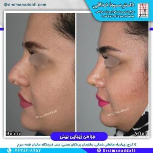جراحی-بینی-کرج-50