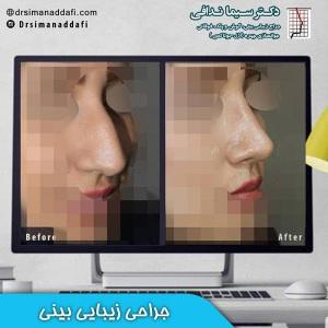 جراحی-بینی-کرج-52