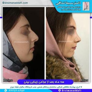 جراحی-بینی-کرج-60