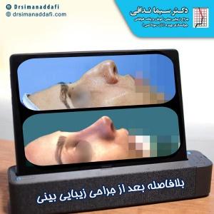 جراحی-بینی-کرج-74
