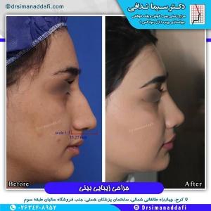 جراحی-بینی-کرج-75