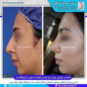 جراحی-بینی-100-12
