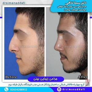 جراحی-بینی-100-3