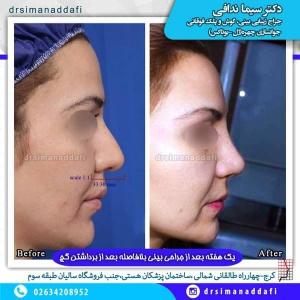 جراحی-بینی-100-4