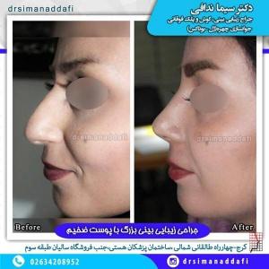 جراحی-بینی-100-5
