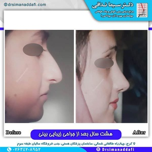 جراحی-بینی-125