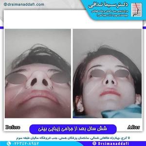 جراحی-بینی-127