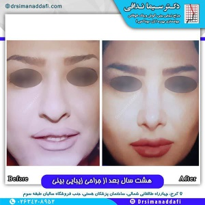 جراحی-بینی-128