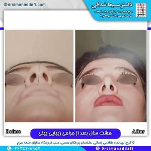 جراحی-بینی-130