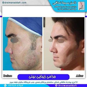 جراحی-بینی-131