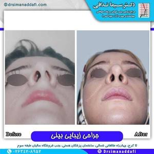 جراحی-بینی-136