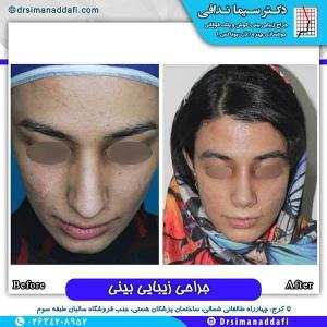 جراحی-بینی-140