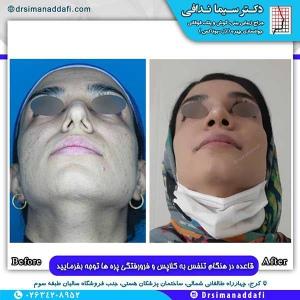 جراحی-بینی-143