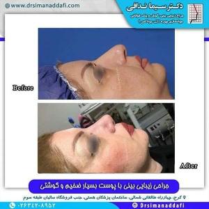 جراحی-بینی-199