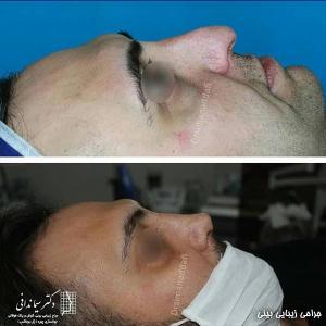 جراحی-بینی-205