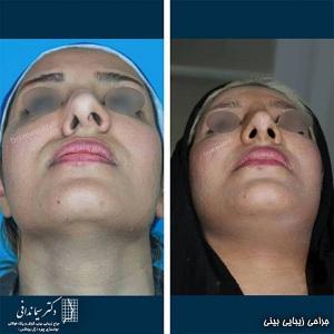 جراحی-بینی-211