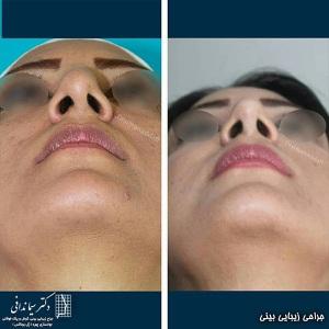 جراحی-بینی-218