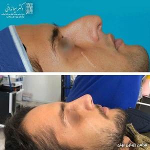 جراحی-بینی-220