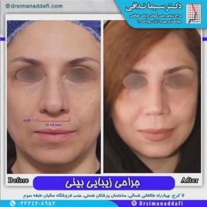 جراحی-بینی-90