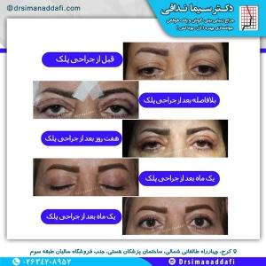 جراحی-پلک-کرج-1