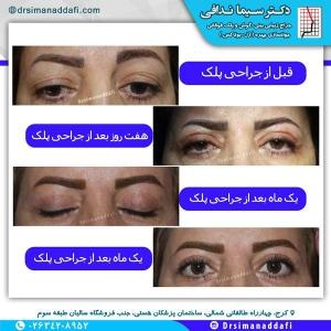 جراحی-پلک-کرج-2