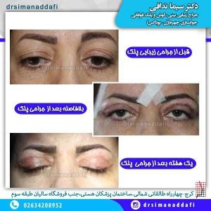 جراحی-پلک-کرج-4