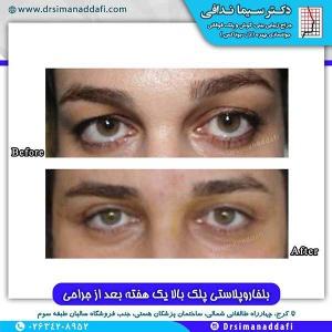 جراحی-پلک-کرج-5