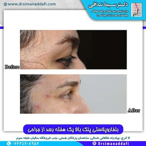 جراحی-پلک-کرج-6