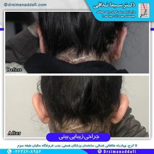 جراحی-گوش-در-کرج-1