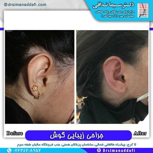 جراحی-گوش-در-کرج-10