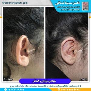 جراحی-گوش-در-کرج-2
