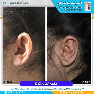 جراحی-گوش-در-کرج-3