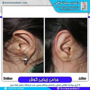 جراحی-گوش-در-کرج-7