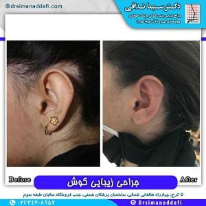 جراحی-گوش-در-کرج-9