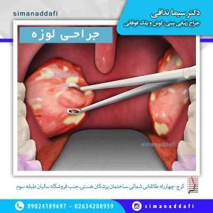 جراحی لوزه