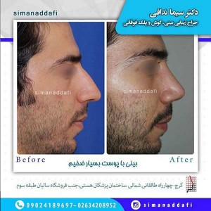 جراحی بینی در کرج