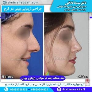 جراحی زیبایی بینی در کرج
